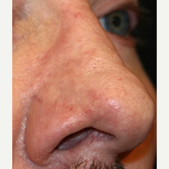 55-64 year old man treated with Dermabrasion after 3139460