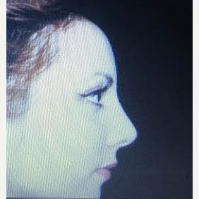 25-34 year old woman treated with Rhinoplasty after 3260935
