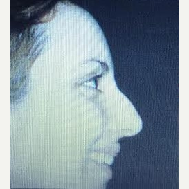 25-34 year old woman treated with Rhinoplasty before 3260935