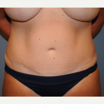 45-54 year old woman treated with Tummy Tuck after 2960791