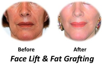 Facelift, fat transfer, skin resurfacing before 70156