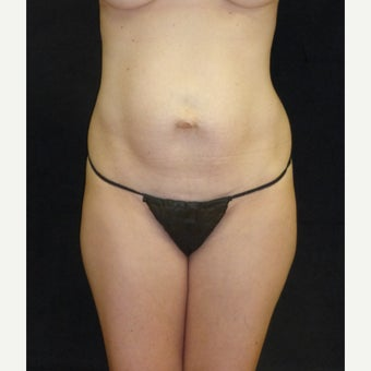 25-34 year old woman treated with Tummy Tuck before 2222562