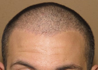 ARTAS robotic hair transplantation after 1097659