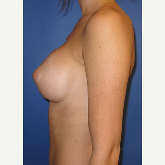18-24 year old woman treated with Breast Augmentation (375cc) after 3374551