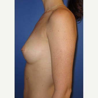 18-24 year old woman treated with Breast Augmentation (375cc) before 3374551