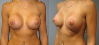 Breast Augmentation, Saline 360cc B to a Full C Cup after 129495