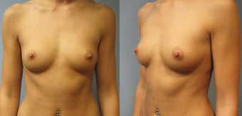 Breast Augmentation, Saline 360cc B to a Full C Cup before 129495