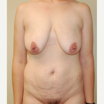 35-44 year old woman treated with Mommy Makeover before 3411366