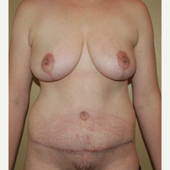35-44 year old woman treated with Mommy Makeover after 3411366
