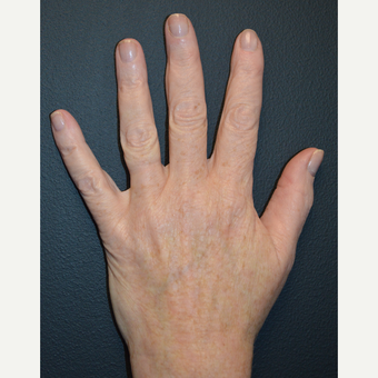 Single treatment using Cutera's Pico Genesis laser to treat brown spots on hands after 3844069