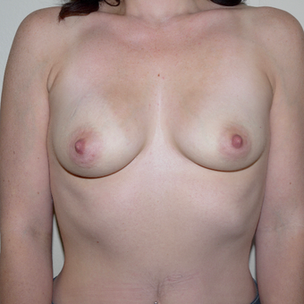 25-34 year old woman treated with Breast Augmentation before 3095773