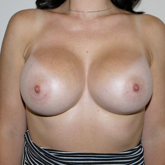 25-34 year old woman treated with Breast Augmentation after 3095773