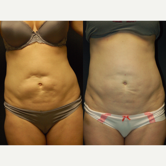Revision And Repair Bad Results Of Liposuction Of Abdomen