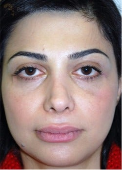 35-44 year old woman treated with Eyelid Surgery after 3264410