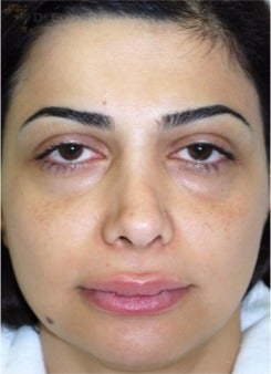35-44 year old woman treated with Eyelid Surgery before 3264410