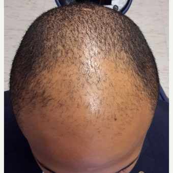 25-34 year old man treated with Hair Transplant before 3851516