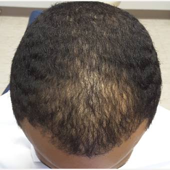 25-34 year old man treated with Hair Transplant after 3851516
