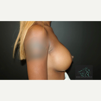 25-34 year old woman treated with Mentor Breast Implants after 3725943