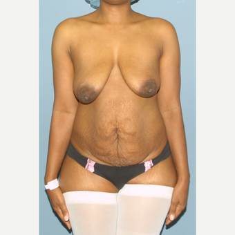 35-44 year old woman treated with Breast Lift before 3475335