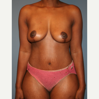 35-44 year old woman treated with Breast Lift after 3475335