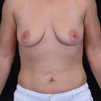 25-34 year old woman treated with Mommy Makeover before 3125448
