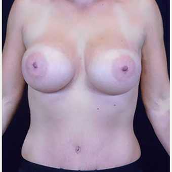 25-34 year old woman treated with Mommy Makeover after 3125448