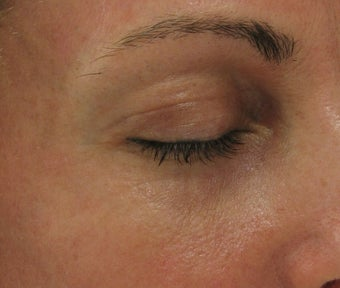 Fraxel re:pair CO2 laser resurfacing for eyes (Nonsurgical Blepharoplasty) after 43974