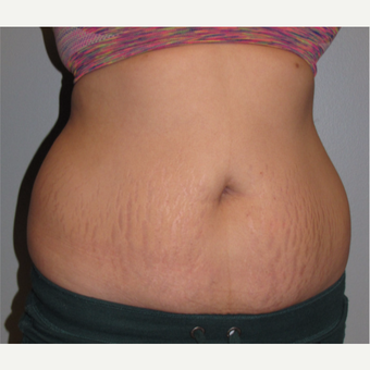 18-24 year old woman treated with Tummy Tuck before 3130512