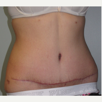 18-24 year old woman treated with Tummy Tuck after 3130512