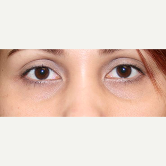 18-24 year old woman treated with Restylane before 3372410