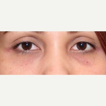 18-24 year old woman treated with Restylane after 3372410