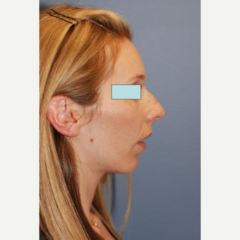 Rhinoplasty before 2990571