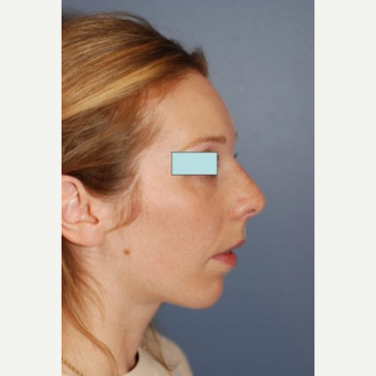 Rhinoplasty after 2990571