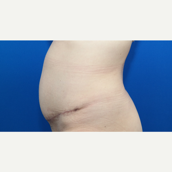 45-54 year old woman treated with Tummy Tuck after 3102864