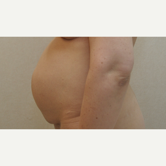 45-54 year old woman treated with Tummy Tuck before 3102864