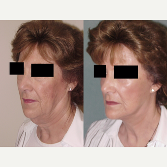 65-74 year old woman treated with Facelift before 3224169