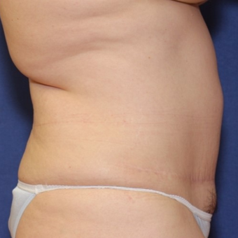 46 year old woman with a Panniculectomy with a vertical extension after 3181094