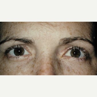 35-44 year old woman treated with Ptosis Surgery