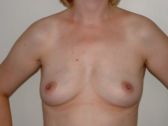 Breast Augmentation before 683184