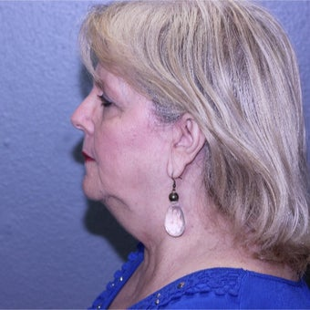 55-64 year old woman treated with Lifestyle Lift before 2029477