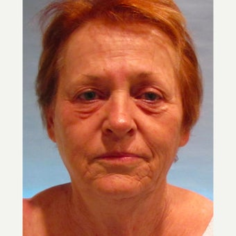 66 year old female underwent facial rejuvenation including a facelift before 2572938