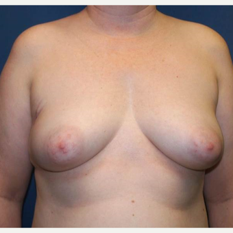 43 year old woman treated with bilateral DIEP flap Reconstruction before 3383438