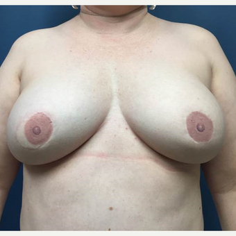 43 year old woman treated with bilateral DIEP flap Reconstruction after 3383438