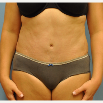 33 year old woman treated with Tummy Tuck after 3583966
