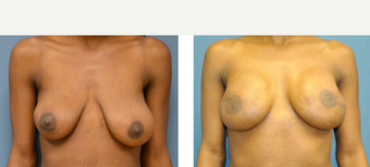 25-34 year old woman treated with Breast Lift with Implants before 3776627