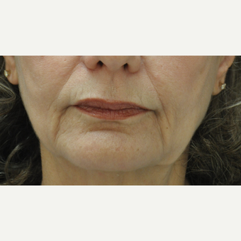 55-64 year old woman treated with Injectable Fillers before 3212379