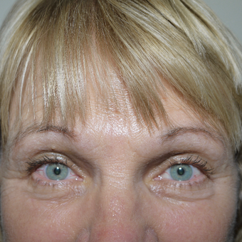 55-64 year old woman treated with Brow Lift after 3095816