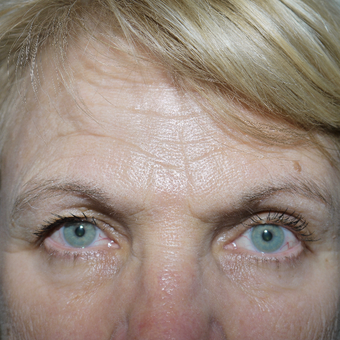 55-64 year old woman treated with Brow Lift before 3095816