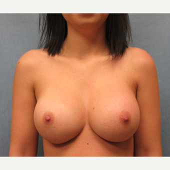 18-24 year old woman treated with Breast Implants after 3636028