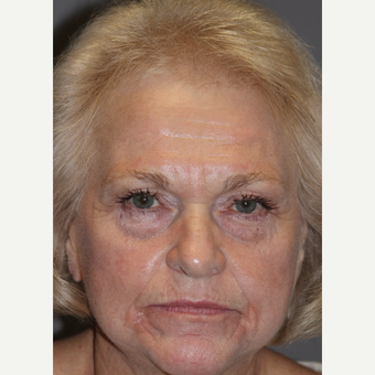 65-74 year old woman treated with Facelift Revision before 3383798